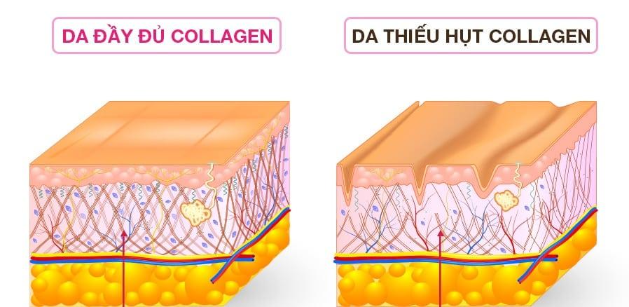 Khi da đầy đủ Collagen sẽ trở nên săn chắc và trẻ trung.